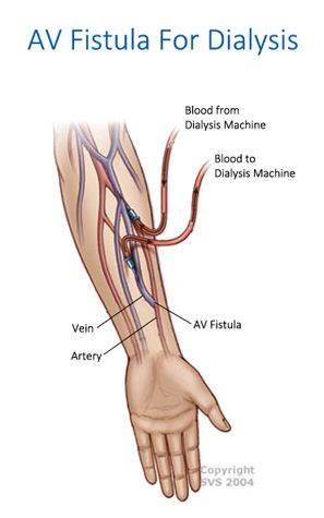 An arteriovenous (AV) fistula for dialysis is created when the vascular surgeon connects one of your arteries to one of your veins. When the artery is connected to the vein more blood volume is allowed to flow through the vein, your vein stretches and it becomes stronger.  #AVFistulaSurgeryRiverviewFL #AVFistulaForDialysisRiverviewFL #FistulaSurgeryRiverviewFL  https://www.veinandvascularinstituteofriverview.com/service/av-fistula-surgery-riverview-fl/