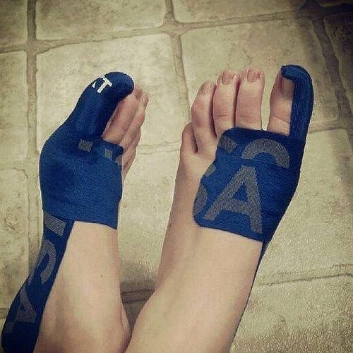KT tape for bunions