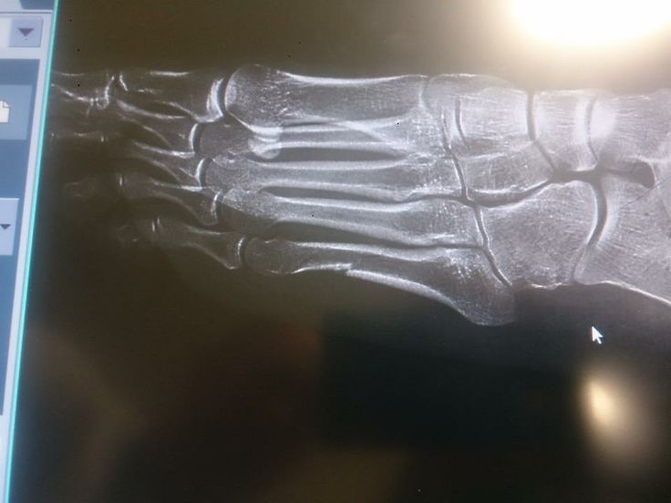To jest prześwietlenie stopy Justyny, jej noga wygląda tragicznie.
