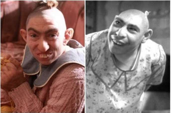 "The Historical Inspirations Behind ""American Horror Story: Freak Show"" - Pinhead/ In the freak shows, those with microcephaly were commonly referred to as ""pinheads."" Microcephaly is a neurodevelopmental disorder that causes abnormal growth of the brain. Two of the more famous examples are Zip the Pinhead and Schlitzie the Pinhead who both appeared in the 1932 movie ""Freaks. "" On AHS, Pepper the Pinhead is played by Naomi Grossman."