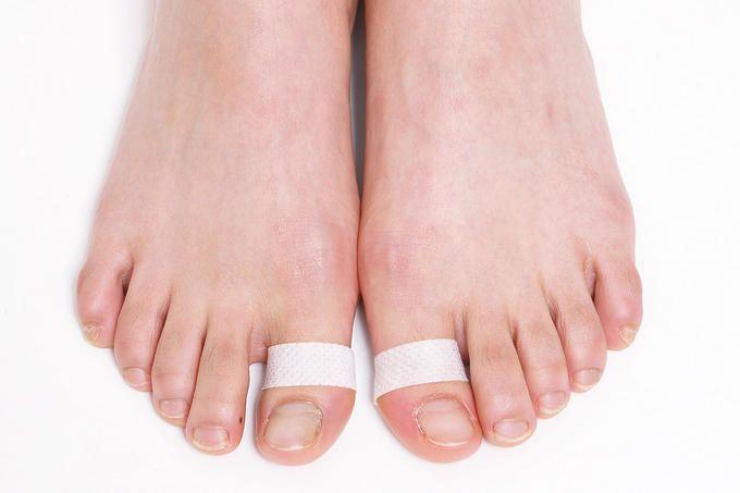自分で治せる o脚の治し方 整形外科医が教える 絆創膏 o脚改善