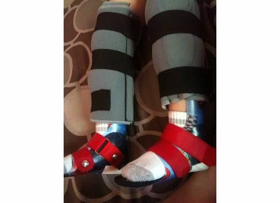 His braces and leg splints! | My sons life with Cerebral ...