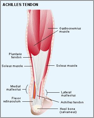 location achilles tendinitis
