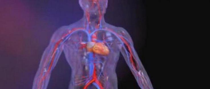 L'infarctus du myocarde - Crise cardiaque
