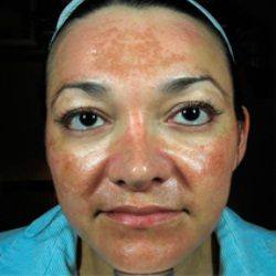 Top Natural Cures For Melasma This is the same pattern I have on my face!!!!