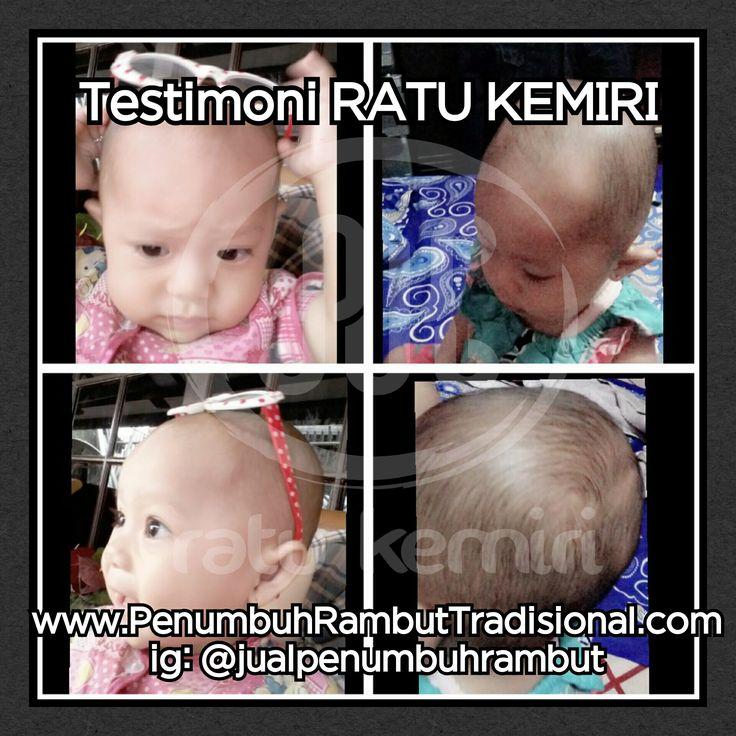 Jual obat penyubur rambut bayi alami Ratu Kemiri. WA 0878 2338 1610, BBM 2BEB4CE4. Minyak kemiri bakar, asli dan berkhasiat.
