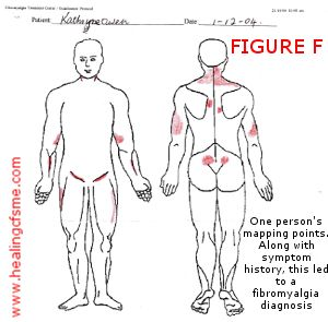 My results for the #Fibromyalgia Test of Mapping which shows the main pain spots on the body. http://www.healingcfsme.com/fibromyalgia-test.html