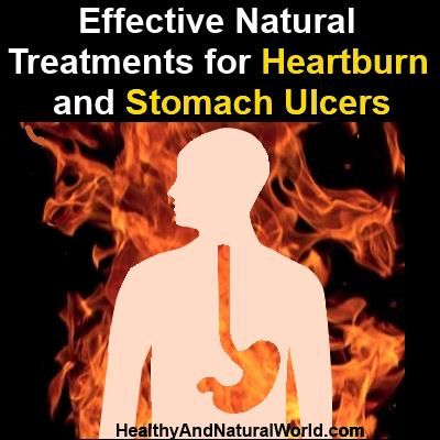 Effective Natural Treatments for Heartburn and Stomach Ulcers