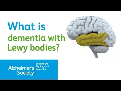 What is Dementia with Lewy Bodies? Alzheimer's Society Dementia Brain Video