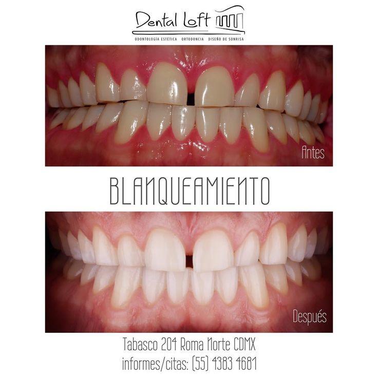 Fotografía clínica antes y después de un tratamiento periodontal y blanqueamiento. ...listo para las siguientes faces de tratamiento @dentalloftmx