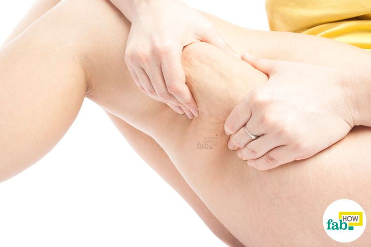 get rid of cellulite