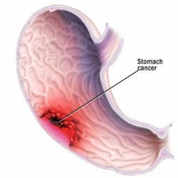 Top Natural Cures For Stomach Cancer