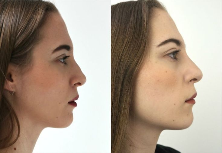 A liquid nose job is now one balancing way for nose reshaping effectively without any surgeries or laser treatments.