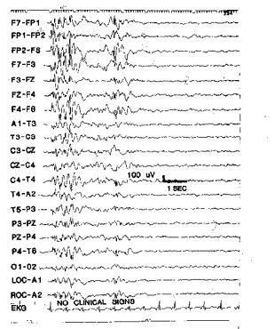 Juvenile myoclonic epilepsy EEG