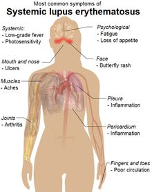Systemic lupus erythematosus - Wikipedia, the free encyclopedia