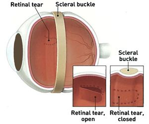 Scleral Buckle treatment involves placing a flexible band (scleral buckle) around the eye to counteract the force pulling the retina out of place.