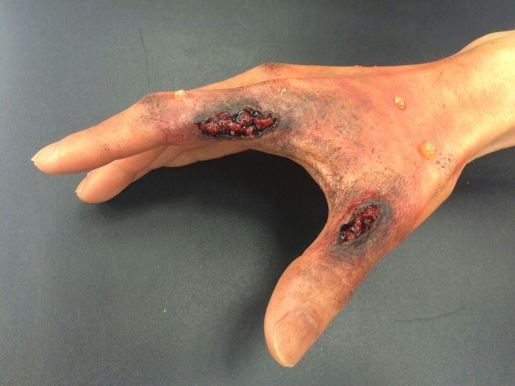 2nd degree burn- wax, latex, fake blood, grease paint