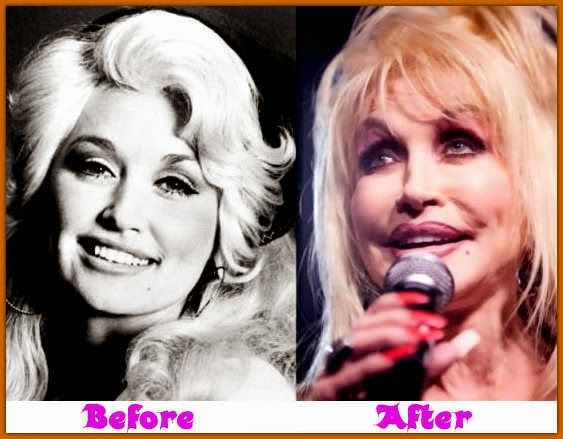 Celebrity Dolly Parton Before And After Plastic Surgery - http://plasticsurgeryclass.com/celebrity-dolly-parton-before-and-after-plastic-surgery/?Pinterest