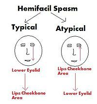 Multiple sclerosis facial twitch