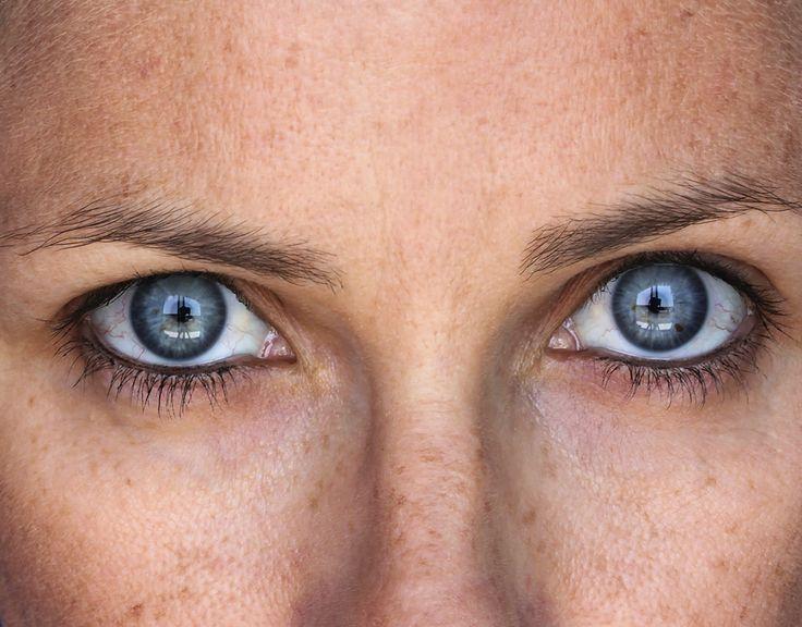 How to lighten sun spots / age spots / liver spots