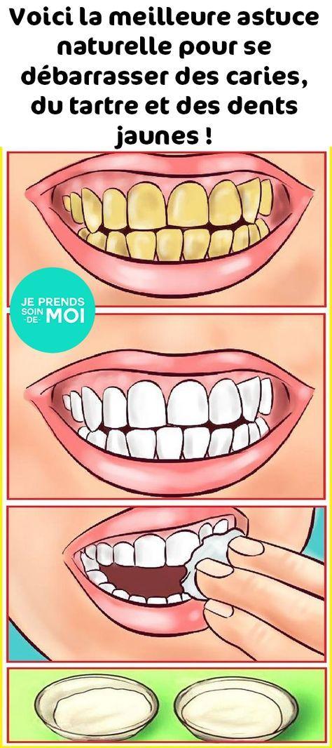 Remark se débarrasser des caries, du tartre et des dents jaunes naturellement ?