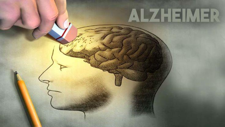 O mal de Alzheimer é uma doença degenerativa e progressiva, que causa atrofia do cérebro, levando à demência em pacientes idosos.