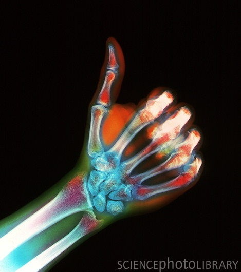 Coloured X-ray of a hand giving a thumb-up sign