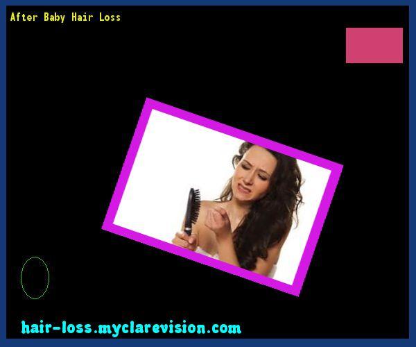 After Baby Hair Loss 122529 - Hair Loss Cure!