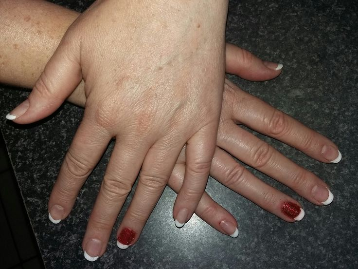 Done my mommy nails #french #biosculpture #red #glitter