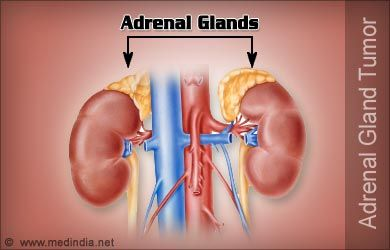 Pheochromocytoma   Adrenal Gland Tumor   Cleaning supplies ...