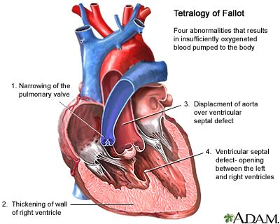 Tetralogy of Fallot is a birth defect of the heart consisting of four abnormalities that results in insufficiently oxygenated blood pumped to the body. It is classified as a cyanotic heart defect because the condition leads to cyanosis, a bluish-purple coloration to the skin, and shortness of breath due to low oxygen levels in the blood. Surgery to repair the defects in the heart is usually performed between 3 and 5 years old. In more severe forms, surgery may be indicated earlier…