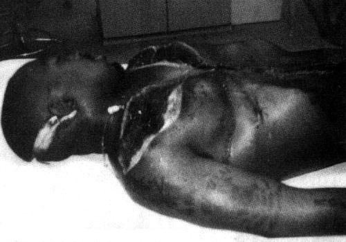 Crime Scene Photos Of Tupac Shakur See full-sized image