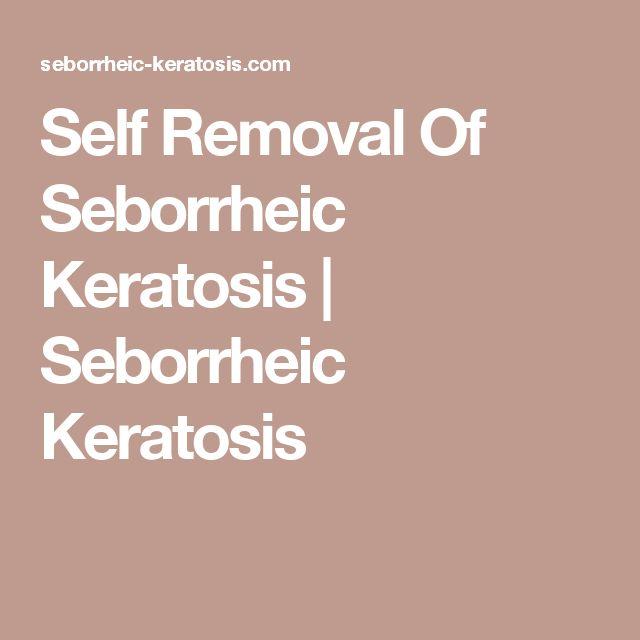 Self Removal Of Seborrheic Keratosis | Seborrheic Keratosis