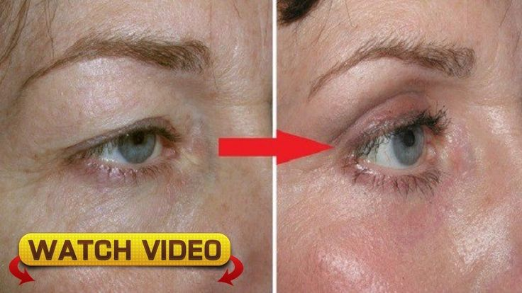 #HealthyLivingTips Natural Remedy For Drooping Eyelids, Sagging Eyelids Or Hooded Eyes #NaturalCure #Health