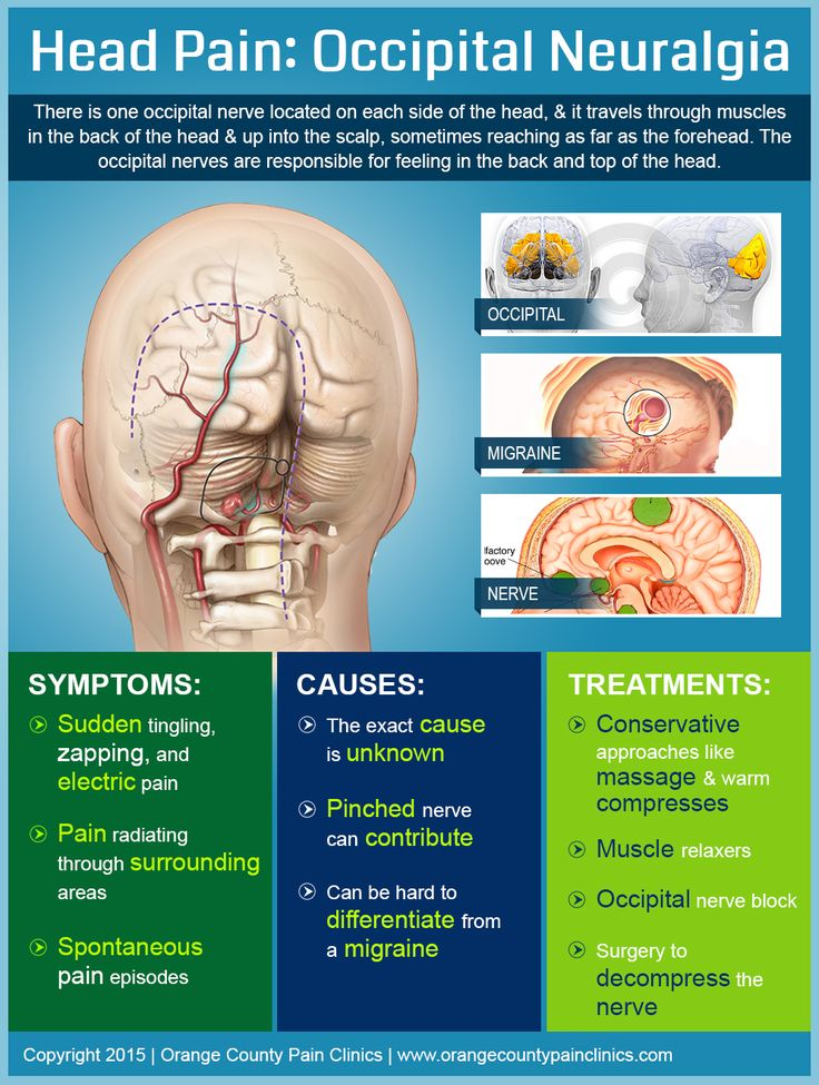Mission Viejo, CA, 92691 – Pain Management – Check out our infographic to learn more about head pain caused by occipital neuralgia.