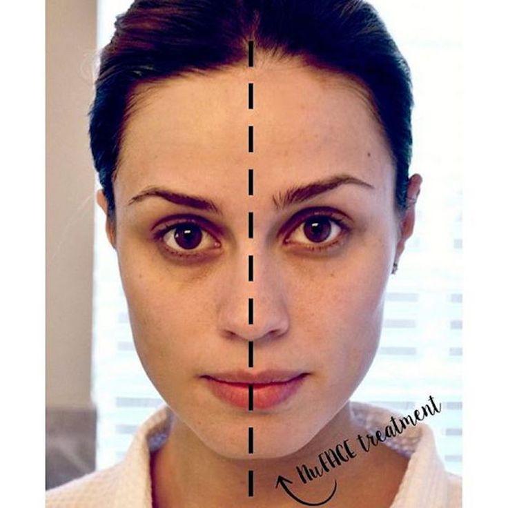 Il microcurrent facial sta spopolando, e per una buona ragione. I risultati sono evidenti in termini di tono della pelle ed effetto lifting!