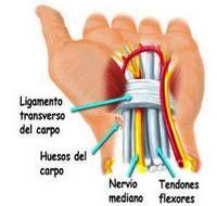 Sindrome del tunel carpiano - El síndrome del túnel carpiano (STC) puede ser definido como el atrapamiento del nervio mediano en el túnel del carpo, una estructura natural localizada en la muñeca por la que cruzan nervios, arterias, venas y tendones. Se lo asocia con traumatismos ocupacionales repetitivos, artritis reumatoide, fracturas de muñeca y acromegalias, pero el 15% de sus casos es de origen o causas desconocidas. Lee más: http://saludtotal.net/sindrome-del-tunel-carpiano/