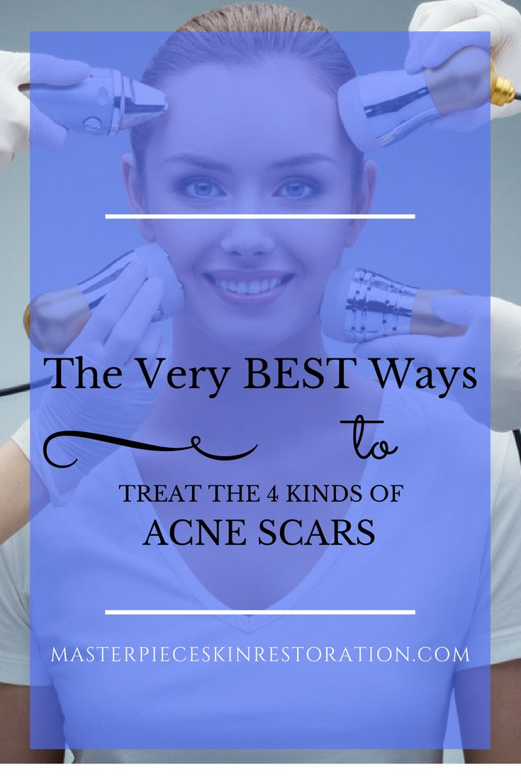 acne scars, boxcar scars, rolling scars, ice pick acne scars, raised scars, skincare products, fillers, hyaluronic acid fillers, chemical peels, lasers, micro-needling, radiofrequency, surgery, steroid injections, skin rejuvenation, scar reduction, Masterpiece Skin Restoration