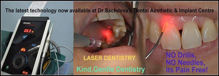 Find Laser Dentistry, Laser Dental Treatment,Dental Surgeon in Delhi,Laser Dentistry delhi,Best Dentist in Delhi,laser dentistry in Delhi ,Best Price low cost Laser Tooth & Teeth Whitening,laser dental treatment cost,Laser Dental Treatment