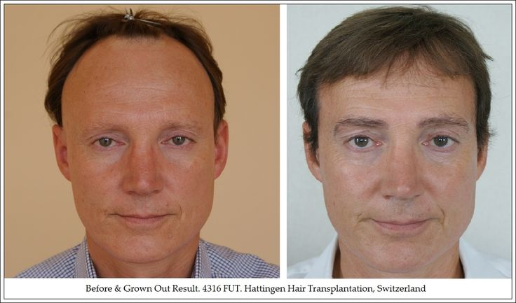 #HairTransplant Results And Reviews