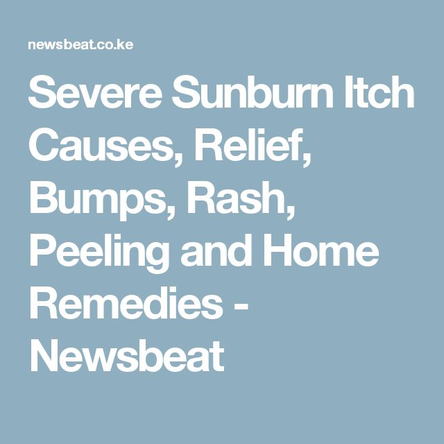 Severe Sunburn Itch Causes, Relief, Bumps, Rash, Peeling and Home Remedies - Newsbeat