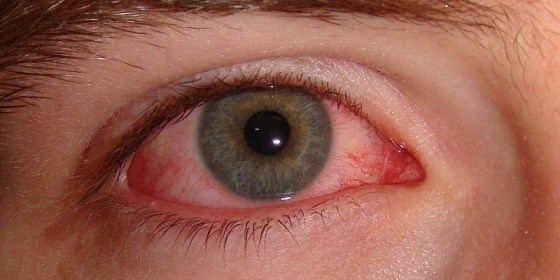 How to use home remedies for red eyes treatment naturally? You went to sleep all solidness and generous, however, woke up with eyes that are red and s...