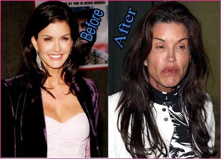 Top 25 Celebrities Before And After Plastic Surgery And Nose Jobs  #Celebrities ...