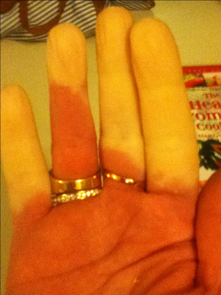 My Hands with Raynauds Disease. Bringing more awareness is my goal.
