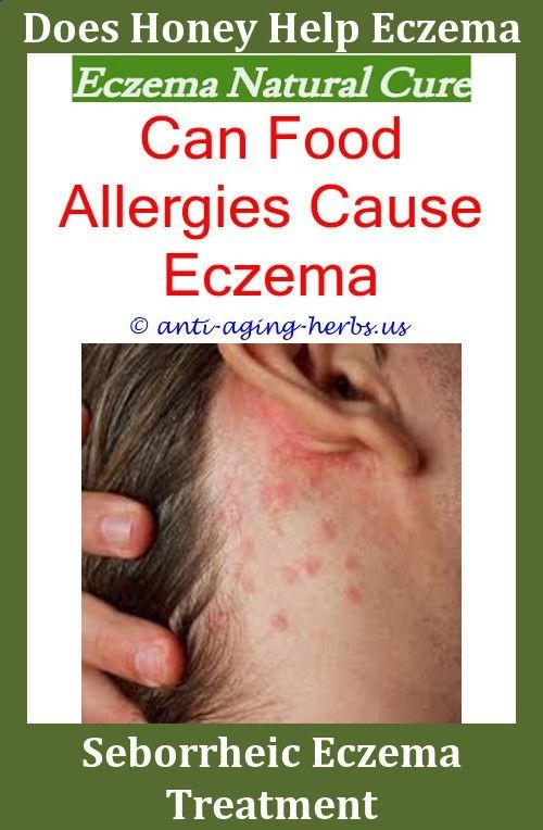 Ayurvedic Treatment For Eczema Can Eczema Be Brown Shampoo And