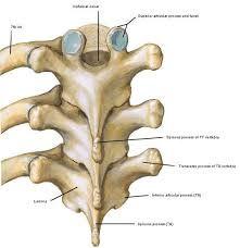 Resultado de imagen de C8 transverse process vertebral artery