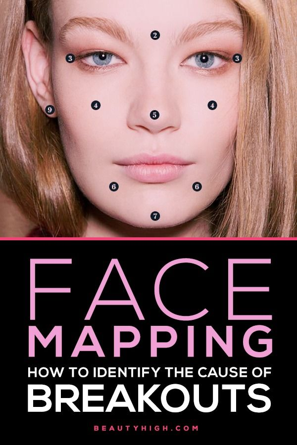 face mapping - some ideas for what maybe the cause of your acne/pimples