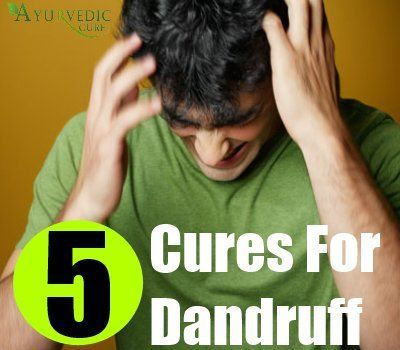 5 Best Natural Remedies And Cures For Dandruff | Herbal Supplements #naturalskincare #healthyskin #skincareproducts #Australianskincare #AqiskinCare #SkinFresh #australianmade