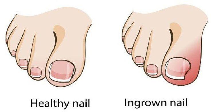 Pozbądź się problemu wrastającego paznokcia