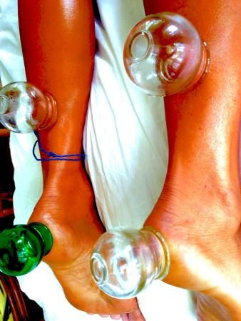 North Shore Kauai Acupuncture & Cupping Massage Therapy: Cupping Therapy for Achilles Tendon and Heel